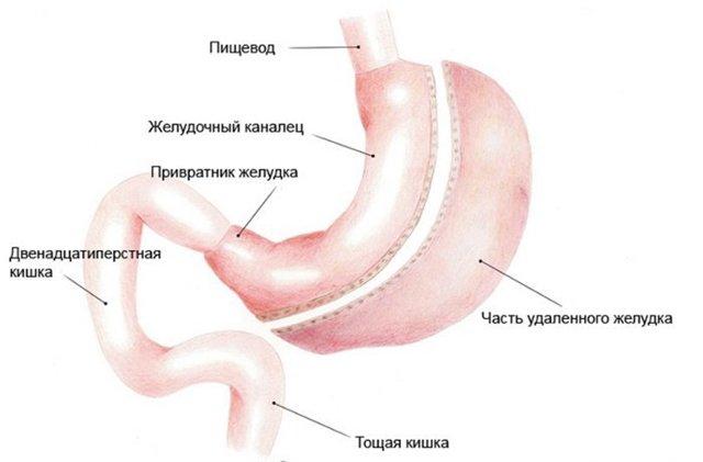 Как уменьшить желудок: эффективные способы без операции, техники хирургии