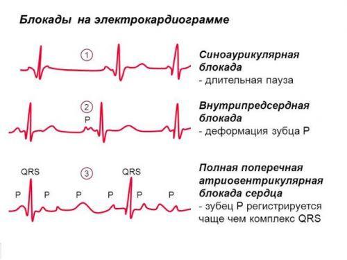 Блокады сердца на ЭКГ: что это такое, виды (полная, неполная, синоартриальная и атриовентрикулярная)