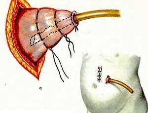 Гастростомия: что это за операция, как проводится по Витцелю, Кадеру, цена