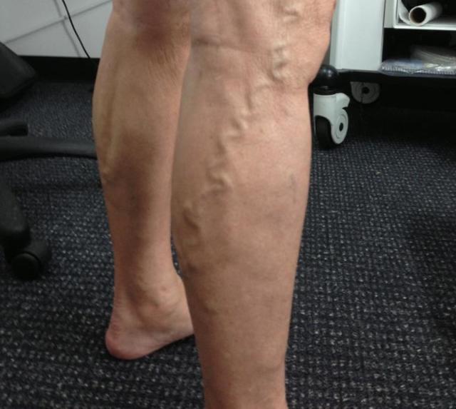 Как называется врач по венам и сосудам на ногах, кто лечит варикоз