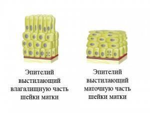 Фоновые заболевания шейки матки