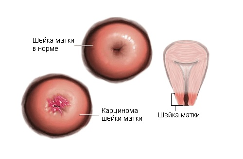 Что такое карцинома шейки матки