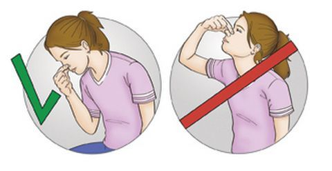 Причины кровотечения из носа (в том числе сильного)