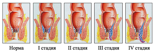 Геморрой без кровотечения, может ли он быть без крови