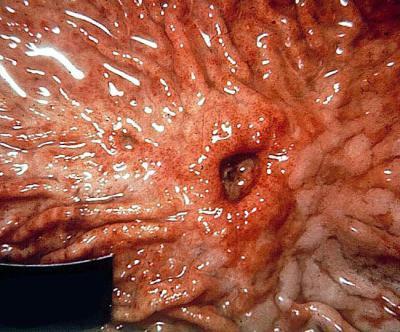 Желудочное кровотечение: признаки и характерные симптомы, диагностика