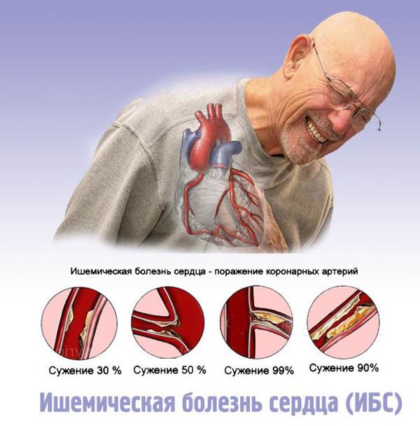 Заболевания сосудов: симптомы и лечение сосудистых болезней