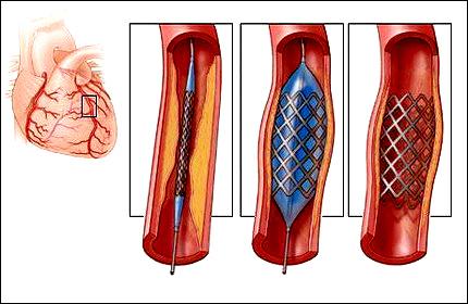 Баллонная ангиопластика сосудов сердца и стентирование коронарных артерий