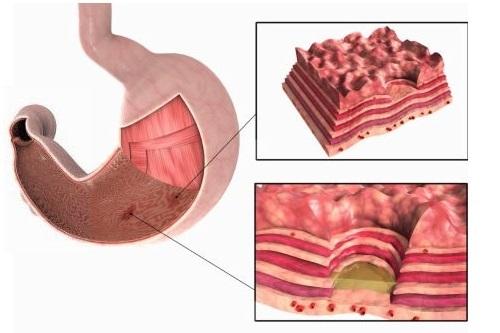 Как вызвать язву желудка быстро: способы приобретения болезни, их опасность