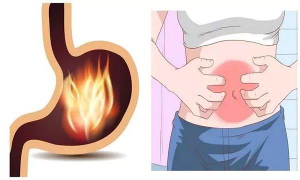 Обострение хронического гастрита: симптомы, диагностика, методы лечения