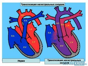 Транспозиция магистральных сосудов и артерий у плода