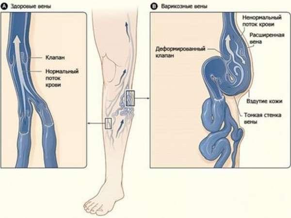 УЗДГ сосудов нижних конечностей (ног): возможности, преимущества и недостатки