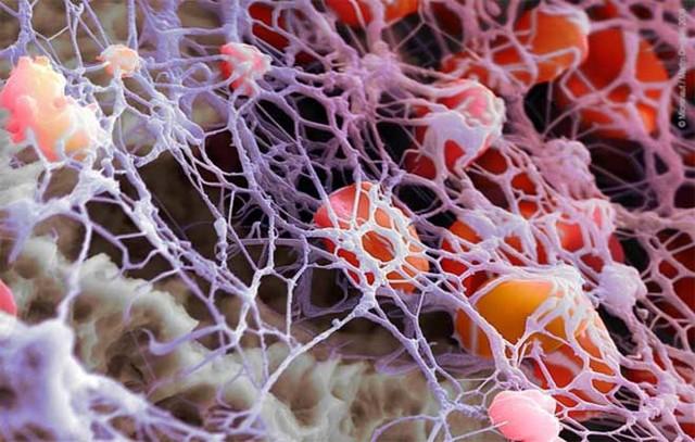 Что делать если средний объем тромбоцитов повышен