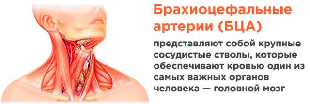 Дуплексное сканирование сосудов головы и шеи (брахиоцефальных)
