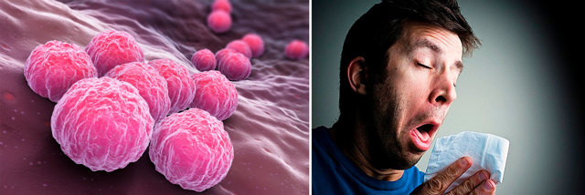 Лечение хламидиоза у мужчин: препараты, схемы и курсы, отзывы