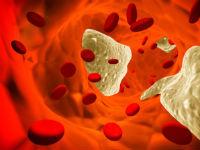 Жирная кровь: что это значит и что делать в таких случаях