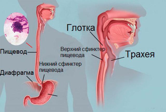 Кандидоз пищевода: причина, симптомы, лечение, мкб. Как диагностируется микоз пищевода и как устранить грибок пищевода