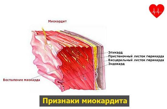 Воспаление сердечной мышцы, симптомы и лечение миокардита