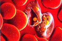 Гемолиз крови: что это такое, причины разрушения эритроцитов при заборе
