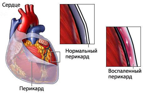 Амилоидоз сердца: причины, классификация, симптомы и лечение