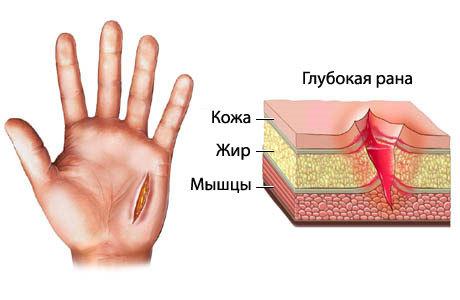 Как и чем остановить кровь при порезе (глубоком, сильном, бритвой)