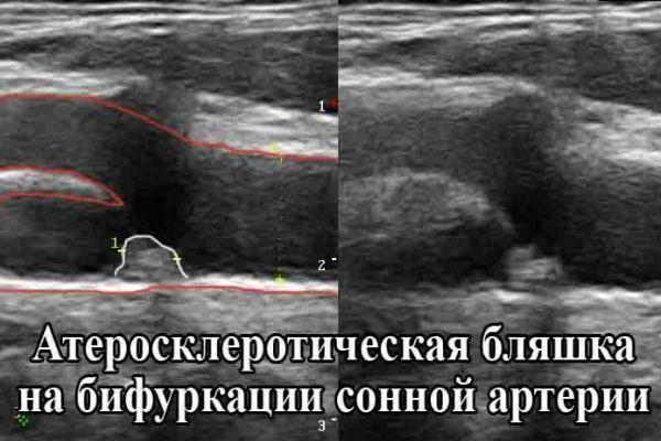 Допплерография сосудов шеи, головы и головного мозга