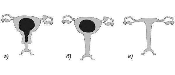 Что такое аплазия матки и шейки матки