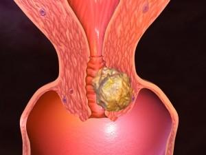 Прогноз жизни при саркоме матки