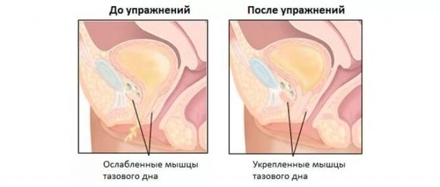 Причины скопления воздуха в матке