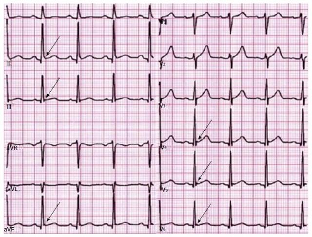 Синдром ранней реполяризации желудочков сердца на ЭКГ: чем опасен, лечение