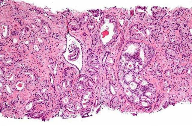 Умеренно дифференцированная аденокарцинома