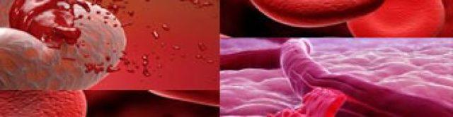 Что такое аррозивное кровотечение, его причины, симптомы и лечение