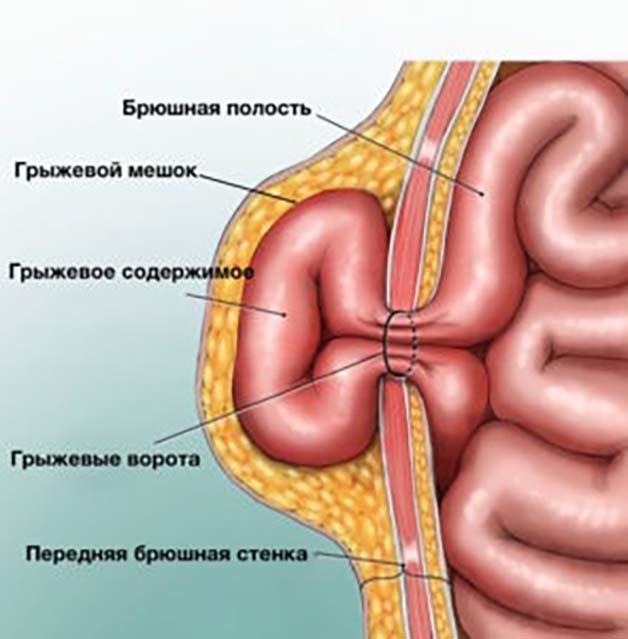 Грыжа желудка: что это такое, причины и симптомы, разновидности, как лечить