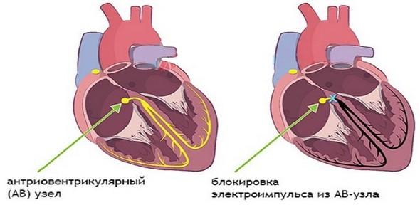 Блокада сердца: виды, степени, как лечить и симптомы