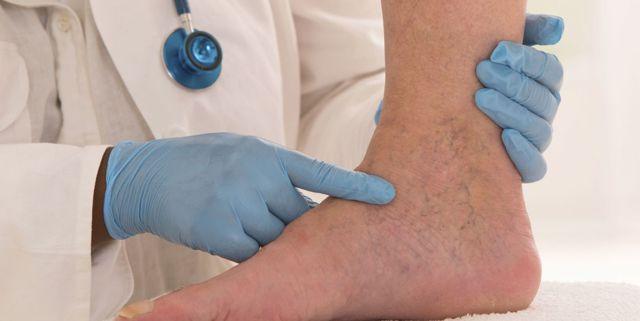 Гиперкоагуляция крови: что это, причины синдрома и лечение
