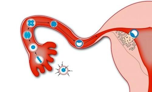 Имплантационное кровотечение: как выглядит и сколько длится