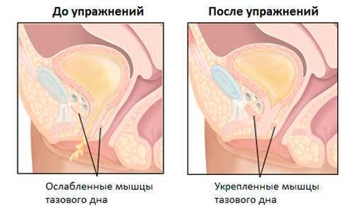 Сколько длится операция по удалению матки