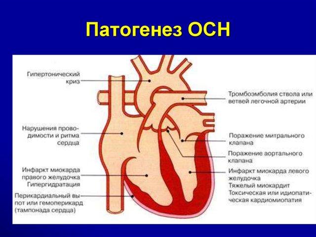 Симптомы сердечной недостаточности (острой, хронической и застойной)